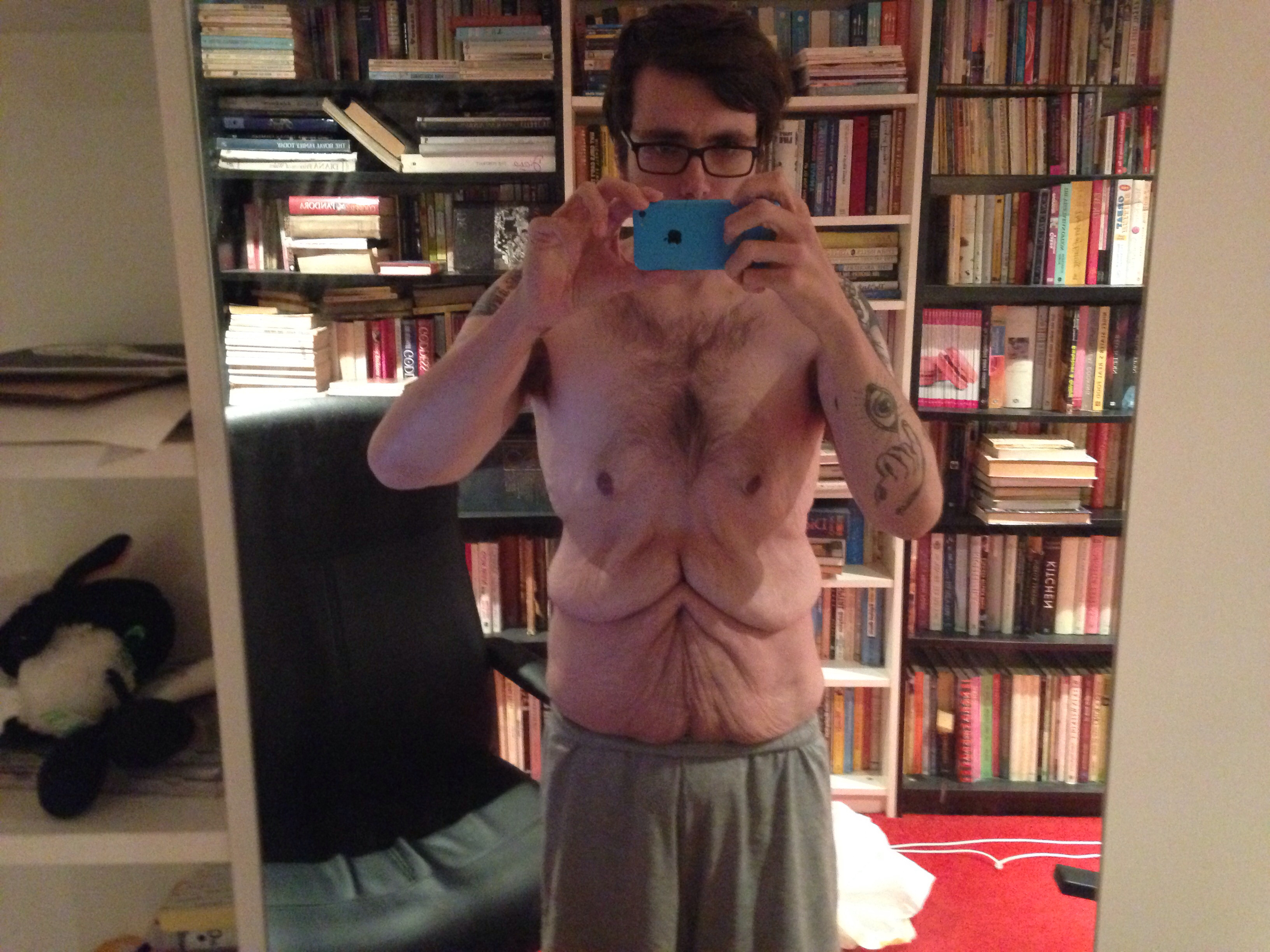Man Shares Photos That Show The True Side Effects Of Weight Loss
