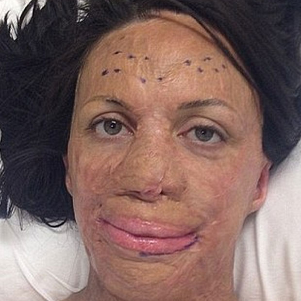 Inspirational Aussie Burns Victim Turia Pitt Reveals New